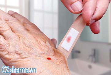 Gạc vaselin mastny – tối ưu cho vết thương hơn băng gạc thông thường