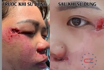 Bệnh nhân bị thương ở mặt do ngã xe
