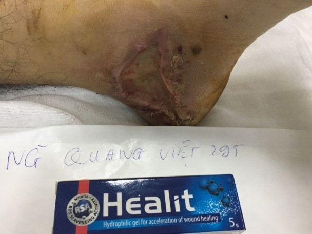 bệnh nhân nguyễn quang việt 29 tuổi