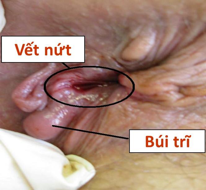 Hình ảnh búi trĩ và vết nứt kẽ hậu môn ban đầu chưa điều trị với Healit Rectan