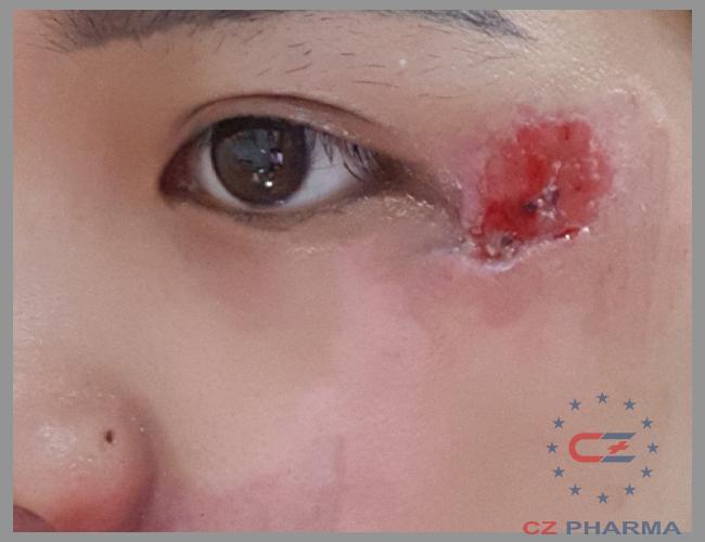Vùng da xung quanh không còn dấu hiệu viêm nhiễm, diện tích vết thương nhỏ.